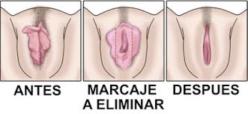 antes y después de la labioplastia